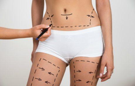 ניתוח מתיחת בטן מול שאיבת שומן
